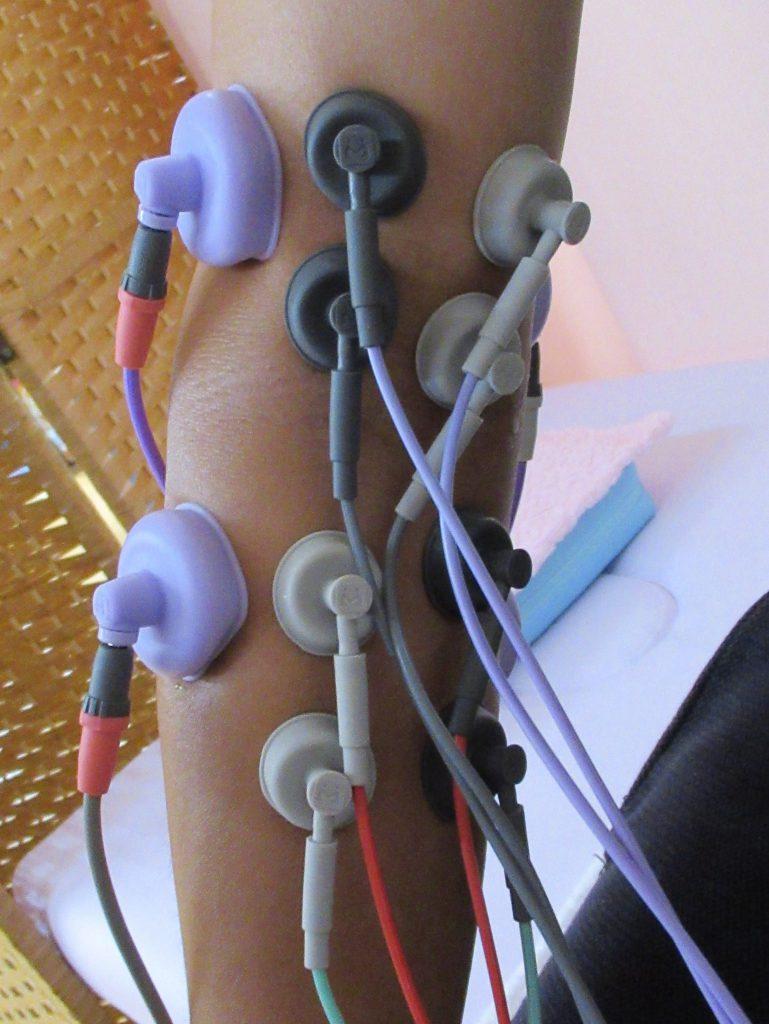 治療 電気